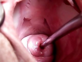 Extreme Real Cervix Fucking Injection Objects In Utherus